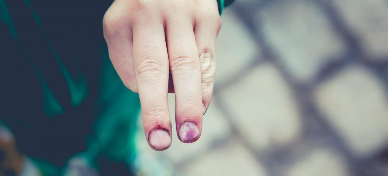 Person with injured fingers